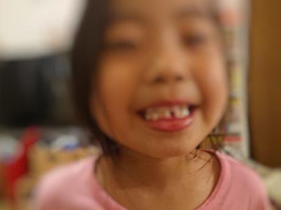 初めて乳歯が抜けた